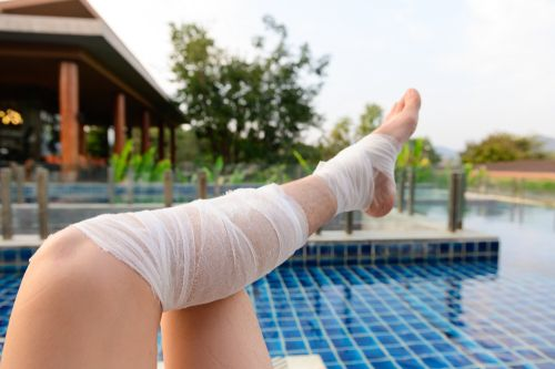 iemand ligt met been in het verband aan het zwembad